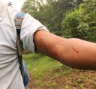 Entrevista a compañero tseltal agredido con bala de goma durante el ataque policial al bloqueo de San Sebastián Bachajón