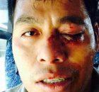 Permanece normalista hospitalizado por agresión militar  TESTIMONIO DE OMAR GARCÍA Ayotzinapa, Guerrero, 13 de enero de 2015.- Omar García, integrante del Comité estudiantil de...